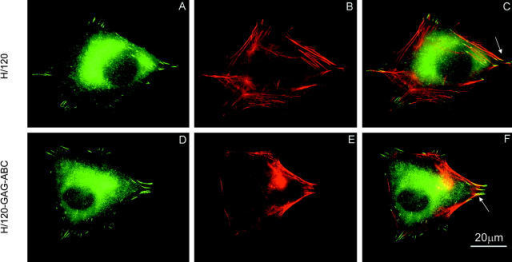 Focal adhesion and actin stress fiber formation in A375-SM melanoma cells seeded on H/120 or H/120-GAG-ABC. Cells were incubated for 2 h on H/120 (A–C) or H/120-GAG-ABC (D–F), fixed and dual-stained for vinculin (A and D) and actin (B and E). Arrows in the merged images (C and F) indicate localization of vinculin at the ends of actin bundles. Bar, 20 μm.