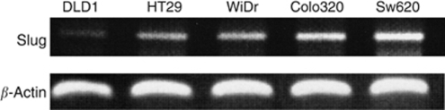 Expression of Slug mRNA in colorectal carcinoma cell lines; DLD1, HT29, WiDr, Colo320DM, SW620. Reverse transcription-polymerase chain reaction was performed and PCR product samples were subjected to 2% agarose gel electrophoresis and visualized by staining with ethidium bromide.