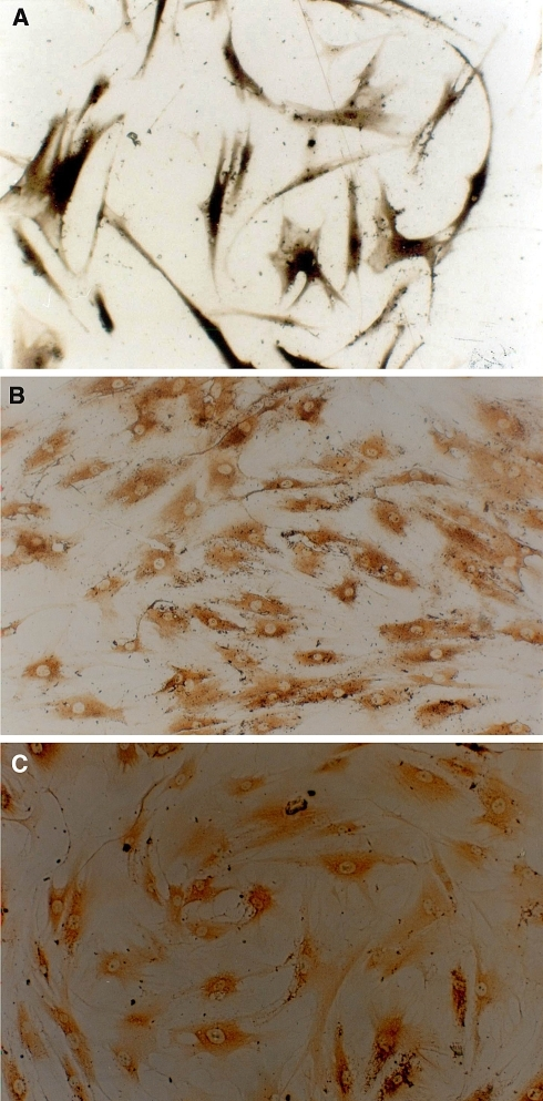 MSCs induced for 7 days with a mixture of osteogenetic inducer of 50 mg/L ascorbic acid, 10 mmol/L β-glycerophosphate and 10−8 mol/L dexamethasone. Athough there was no obvious morphological change, microscopically, they already showed osteogenic differentiation. a Induced MSCs expressed large quantities of ALP intracellularly (ALP Gomori staining, ×100). b, c show osteocalcin and І-collagen expression, respectively, confirmed by immunocytochemistry (ABC ×100). All of these three phenotypes proved that the MSCs had differentiated into osteoblast