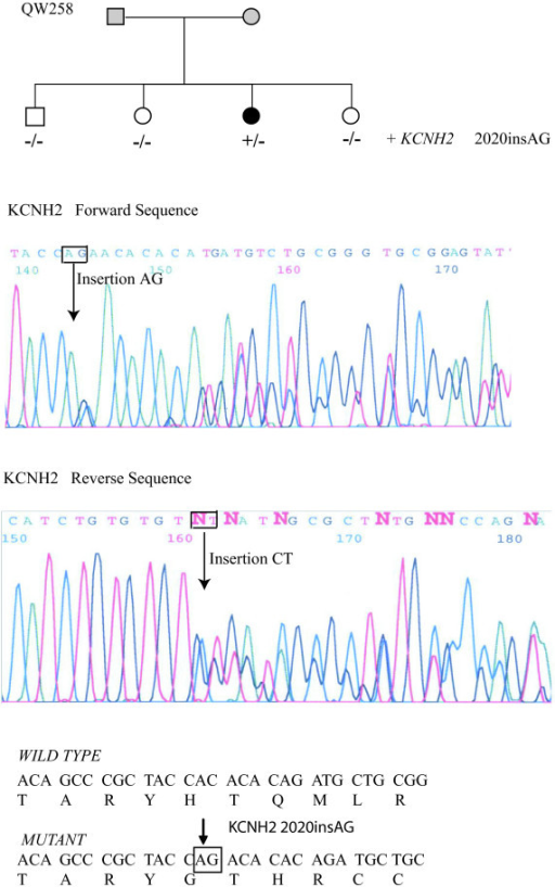 Identification of a novel mutation in KCNH2, 2020insAG, in family QW258. Top, pedigree structure; Middle, DNA sequence for the patient using the forward primer; Bottom, DNA sequence for the patient using the reverse primer.