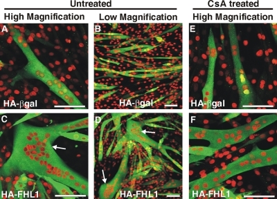 FHL1 induces formation of hypertrophic myotubes, dependent upon calcineurin signaling. C2C12 myoblasts were transiently transfected with HA-βgal control (A, B, and E) or HA-FHL1 (C, D, and F), and left untreated (A–D) or treated with the calcineurin inhibitor CsA (E and F) before and during induction of differentiation in low serum media for 96 h. Transfected cells were detected using an HA antibody (green) and costained with propidium iodide (red) to identify nuclei. Cells were visualized using laser scanning confocal microscopy. Arrows indicate hypertrophic myotubes. Bars, 100 μm.