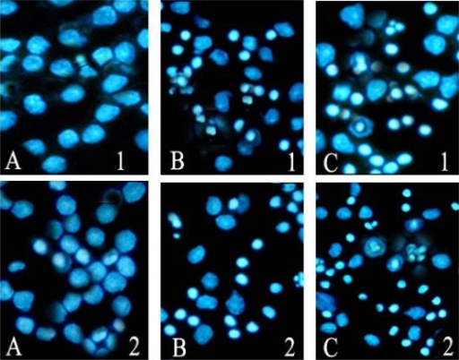 Apoptosis observed by Hoechst 33258 staining (200×). A | Open-i