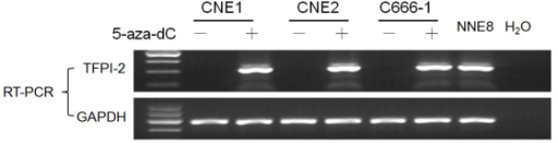Treatment with 5-aza-dC restores TFPI-2 expression in 3 NPC cell lines. TFPI-2 mRNA expression level was evaluated by RT-PCR. GAPDH was amplified as an internal control. NNE8 was used as positive control. A water blank control was also included.