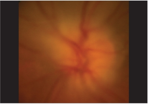 Color photograph of the left optic disc following resolution of acute angle closure