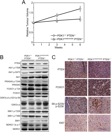 Reduced tumour growth in PDK1K465E/K465EPTEN+/− mice. (A) The size of B cell follicular lymphomas of 11-month-old littermate PDK1+/+PTEN+/− and PDK1K465E/K465E PTEN+/− mice were determined by MRI imaging. Individual tumours from the same animal were measured at 0-, 3- and 6-week intervals. The data are depicted as relative tumour volume. PDK1+/+ PTEN+/− n=3, PDK1K465E/K465E PTEN+/− n=2. (B) Lysates of B cell follicular lymphomas from PDK1+/+ PTEN+/− and PDK1K465E/K465E PTEN+/− mice were subjected to immunoblot analysis using the indicated antibodies. (C) Immunohistochemical analysis of B cell follicular lymphomas using the indicated antibodies.