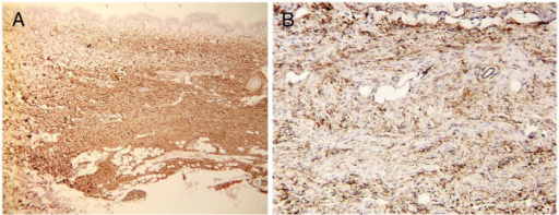 The spindle cells were immunohistochemically positive for CD34 (CD34 stain; original magnifications: A, ×40, B, × 400).
