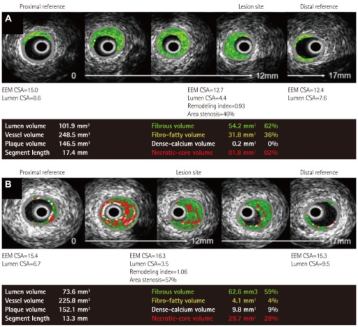 Representative VH-IVUS findings in both groups. A: normocholesterolemic patient (42 years old man with stable angina pectoris) showed small amounts of necrotic core volume. B: hypercholesterolemic patient (55 years old man with ST-segment elevation myocardial infarction) showed large amounts of necrotic core volume. VH-IVUS: virtual histology-intravascular ultrasound, EEM: external elastic membrane, CSA: cross sectional area.