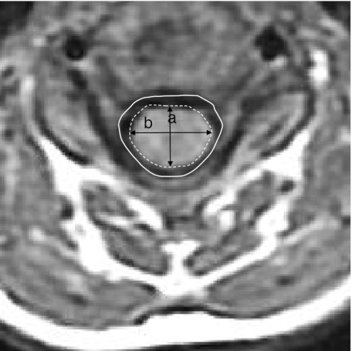 Axial section of T1-weighted MRI showing the measuremen ...