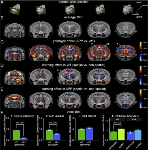 Focal hippocampal volume increase associated with spatial learning and memory in WT mice is attenuated in APP mice. (A) Location of the five MRI slices shown in reference to the 3D brain. (B) Population-specific 3D MRI brain atlas. (C) Effect of genotype on local brain volume. Warm colors correspond to regions where APP brains were larger than WT whereas cool colors indicate regions that were smaller. The expansion/contraction map is masked based on statistical significance at a false discovery rate (FDR) of 10%. Cross-hairs 1 and 2 point to specific areas that are smaller in APP brains compared to WT, namely, the corpus callosum/cingulum bundle and the midline-adjacent CA1 regions, respectively. Cross-hair 3 points to an area of no change, specifically, the lateral CA1 region. (D) Expansion/contraction associated with spatial vs. non-spatial learning and memory in WT mice (masked at 10% FDR). Cross-hair 4 points to volume increase in the CA1/CA2 boundary region. (E) Expansion/contraction associated with spatial vs. non-spatial learning and memory in APP mice (same significance mask as in (D)). Compared to WT mice, APP mice display attenuated hippocampal volume increase following spatial Morris Water Maze performance. (F) The bar graphs show mean and standard error for the expansion/contraction factor associated with each selected voxel (cross-hairs c1–3 and d4). The genotype plots (1–3) have been normalized such that the WT homecage controls have a factor of 1.0. The training effect plots (4) have been normalized such that the homecage controls for respective genotypes have a factor of 1.0. WT: wild-type.