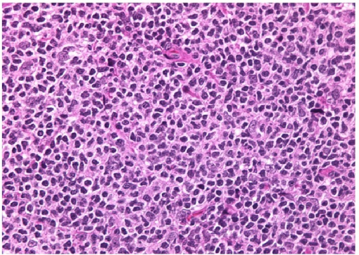 Nodular proliferation of atypical lymphoid cells composed predominantly of centrocytes with admixed scattered centroblasts.