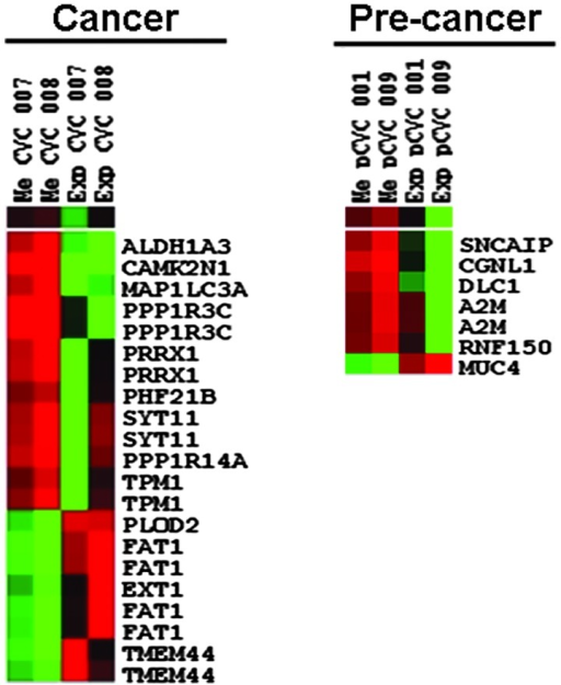 Heatmaps of differentially-expressed genes and methylated loci. There are 19 significantly up- or downregulated genes and 28 methylated loci revealing differential mRNA expression and methylation profiles in the cervical cancer tissues. Different numbers for expression and methylation profiles are observed since some of the genes have two or more methylation loci. Red and green colors indicate the extent of the profiles in the cancer tissues versus that of the normal tissues of each patient sample. For example, red color in methylation profiles and green color in expression profiles show the hypermethylation and downregulation in cancer versus normal tissues, respectively.