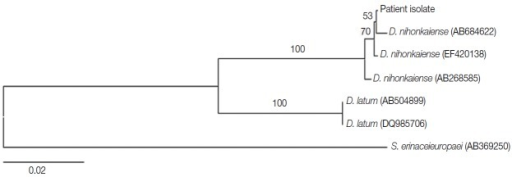 Neighbor-joining tree of human Diphyllobothrium tapeworms based on nucleotide sequences of the cox1 gene. Numbers above the branches detect the bootstrap values (1,000 replicates). The scale bar represents the estimated number of nucleotide substitutions per nucleotide site. The phylogenetic tree reveals that the cox1 gene from our case was closer to D. nihonkaiense than D. latum.