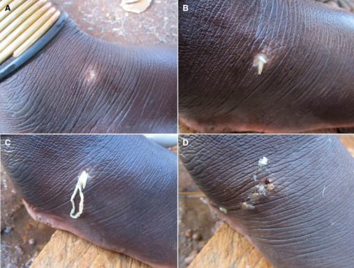 "Clinical presentation of a case of sparganosis illustrating the progression of the emergence of the spargana. (A) Initial lesion with minute white tip of worm. (B) Protrusion of larger portion of larva. (C) Mass of ""hanging"" worm. (D) Lesion after final emergence of larva. These images show the remarkable similarity to the appearance of emergence of Guinea worm."