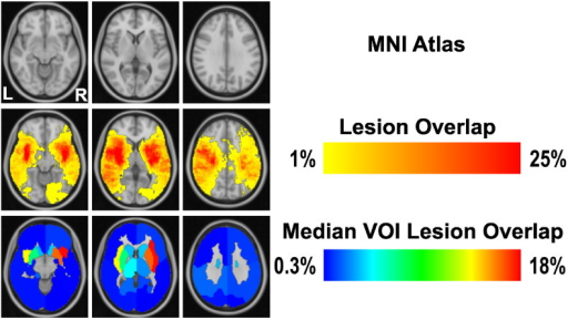 Lesion Overlap in MNI152 standard atlas space. From top to bottom, representation of MNI atlas (we selected three representative slices from the MNI atlas that covered all structural regions), Lesion Overlap and Median VOI Lesion Overlap, in neurological convention. While the lesion overlap focuses at the scale of voxels, median VOI lesion overlap shows the relative (median percentage) infarction within the confines of the predefined 2 × 8 VOIs.