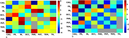 Functional interactions among VOIs. Matrix representation of (symmetric) mean functional interactions of (a) left and (b) right VOIs. The color scales indicate the range of variation of left (a) and right (b) mean functional interactions. In (a), all interactions are significantly different from zero (after Bonferroni correction), except between parietal–occipital, parietal–putamen and parietal–temporal regions (represented as gray entries in the matrix). In (b), all interactions are significantly different from zero (after Bonferroni correction), except between temporal–occipital, temporal–thalamus, thalamus–parietal, thalamus–putamen regions (represented as gray entries in the matrix).