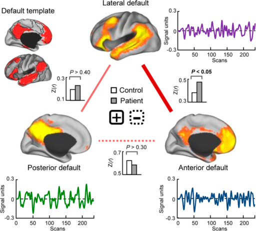 Comparison of intra-default functional connectivity between schizophrenic patients and healthy controls (two-sample t-test, P < 0.05, uncorrected).The upper left panel presents the default mode network (DMN) template based on prior parcellation of the cerebrum22. The spatial expression and corresponding time courses of the DMN subnetworks for the two groups are also presented (one-sample t-test, P < 0.05, FWE corrected). The anterior DMN mainly consists of the medial prefrontal cortex and portions of the posterior cingulate cortex and bilateral parietal cortex. The posterior DMN consists predominantly of the bilateral precuneus and posterior cingulate cortex, as well as part of the bilateral parietal cortex. The lateral DMN primarily consists of the bilateral parietal cortex, bilateral temporal cortex, and part of the lateral prefrontal cortex. It was observed that positive functional connectivity between the lateral and anterior DMNs was increased in schizophrenic patients relative to healthy controls (P < 0.05, uncorrected), and in non-medicated patients (n = 34) relative to healthy controls (P < 0.05, uncorrected). The red lines represent positive functional connectivity. The solid and dashed lines represent an increase and decrease in schizophrenic patients relative to healthy controls, respectively. CARET software (CARET; http://brainvis.wustl.edu) was used for surface rendering.
