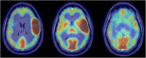 AMT-PET/T1-Gad MRI fusion images of a patient (#10) with left frontal WHO grade 2 glioma. Contralateral frontal, parietal, and temporal cortical, as well as thalamic and striatal regions of interest used for analysis, are outlined in red