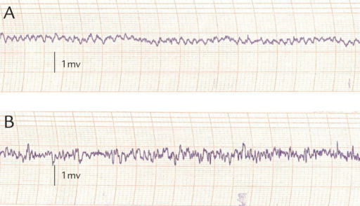 Spectral characteristics of EEG in (A) normal Wistar rats and (B) rats with kainic acid-induced epilepsy. Normal brain waves have a frequency of 5 to 10 Hz and an amplitude below 700 μV, whereas multiple forms of abnormal waveforms are observed following induction of epilepsy.