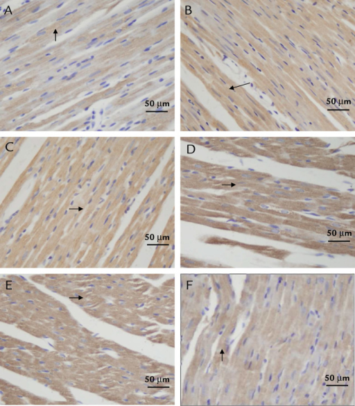 Recombinant human erythropoietin (rhEPO) and carbamylated erythropoietin (CEPO) upregulate expression of bcl-xl protein in the myocardium of rats with kainic acid-induced epilepsy. Myocardial bcl-xl protein expression was determined by immunohistochemistry at 0, 2, 6, 12, and 24 hours after the onset of seizures. Representative images (400×; 24 hours after onset of seizures) of bcl-xl expression in the myocardium of (A) control and (B) epileptic rats and epileptic rats treated with (C) ethanol, (D) rhEPO, (E) CEPO, or (F) AG490. The cytoplasm of positive cells is stained brown (shown by arrows).