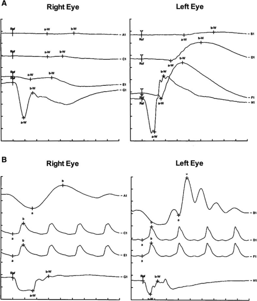 Characteristic electrophysiological findings in melanoma-associated retinopathy (MAR). a Scotopic (rod responses) full-field electroretinogram (ERG): Negative ERG with missing b-waves on the right eye and normal responses on the left one. b Photopic (cone responses) full-field ERG: Negative ERG with missing b-waves on both eyes, however, this was more pronounced on the right eye