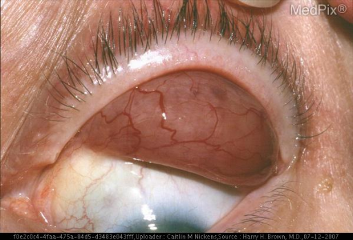 A patient with mantle cell lymphoma of the lacrimal glands.