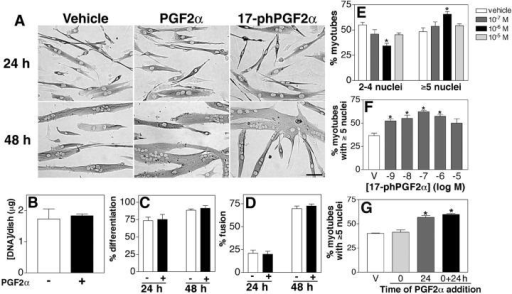 PGF2α increases myotube size by facilitating muscle cell fusion. (A) Primary myoblasts were induced to differentiate in the presence of vehicle (10−6 M PGF2α or 10−7 M 17-phPGF2α) and immunostained for EMyHC at the indicated times. Bar, 60 μm. (B) The DNA content of myotube cultures treated with vehicle or 10−6 M PGF2α was quantified after 48 h in DM. (C) The percentage of nuclei within EMyHC-positive cells was analyzed after treatment with vehicle or 10−6 M PGF2α at the indicated times. (D) The percentage of nuclei within myotubes was calculated after treatment with vehicle or 10−6 M PGF2α at the indicated times. (E) Cells were treated with the indicated doses of PGF2α for 48 h, and the number of nuclei within individual myotubes was counted. Myotubes were grouped into two categories, and the percentage of myotubes in each category was determined. Data are mean ± SEM of three independent cell isolates. *Significantly different from vehicle, P < 0.05. (F) Cells were treated with the indicated doses of 17-phPGF2α for 48 h, and the number of nuclei within individual myotubes was counted as in E. Data are mean ± SEM of three independent experiments. *Significantly different from vehicle, P < 0.05. (G) Cells were treated with vehicle or 10−6 M PGF2α at 0, 24, or both 0 and 24 h. Nuclear number assays were performed as in E, and the percentage of myotubes with five or more nuclei is shown. Data are mean ± SEM of three independent experiments. *Significantly different from vehicle, P < 0.05.