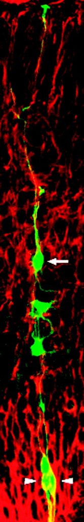 Radial glia (green) are the source and roadway for new neurons (arrow).Kriegstein/Macmillan