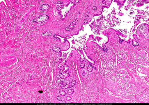 Histopathology: The biopsy shows an intradermal sinus tract lined by colonic type epithelium consistent with an enteric sinus tract. The surrounding and deep dermis show extensive proliferations of small capillaries consistent with a hemangioma.