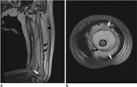 MRI of the left thigh performed at the first hospital d | Open-i