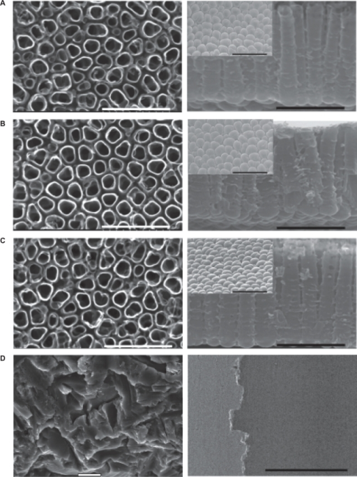 FE-SEM images of top view (first column), cross-section (second column), and bottom view (inset) of the nanotube implants formed in 1M H3PO4 + 0.4 wt.% HF at 20 V for A) 30 minutes, B) one hour, C) three hours (scale bar = 500 nm) and D) the blasted implants formed using 100–150 μm particles of TiO2 (scale bar = 5 μm).