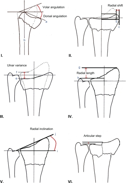 Radiographic Measures Of Outcome In Distal Radius Fract