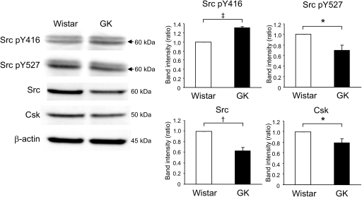 Comparison of expression of Src between fresh Wistar and GK islets. Fresh islets were lysated and subjected to immunoblot analyses. Blots (50 μg of protein) were probed with anti–phospho-Src (Tyr416), anti–phospho-Src (Tyr527), anti-Src, or anti-Csk. The same blots were stripped and reprobed with anti–β-actin, respectively. Intensities of the bands were quantified with densitometric imager. The bar graphs are expressed relative to Wistar islet value corrected by β-actin level (means ± SE). *P < 0.05; †P < 0.01; ‡P < 0.001. Representative blot panels of three to five independent experiments are shown.