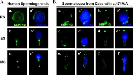 Expression patterns of SEPT12 human male germ cells with the c.474G/G (wild) and c.474A/A genotypes.(A.) Detection of SEPT12 signals during human spermiogenesis. (a.–a′): Round Spermatids (RS), (b.–b′) Elongating Spermatids (ES) and Mature Sperm (MS). Left: SEPT12 signal (green); Right: merge of SEPT12 (green) and DAPI (light blue) signals. (B.) Varied type of spermatozoa isolated from cases with the c.474A/A genotype. Left: SEPT12 signal (green); Right: merge of SEPT12 (green) and DAPI (light blue) signals (Magnification: ×1,000).