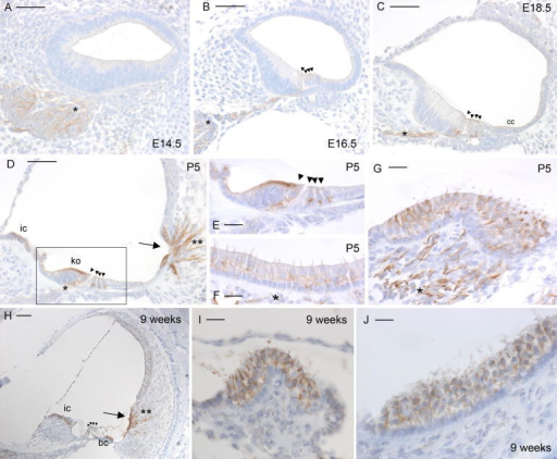 Immunohistochemistry for Odf2 expression in the mouse inner ear. Brown indicates positive staining. (A) Cochlear duct at E14.5, showing clear staining of neurons. (B) Cochlear duct at E16.5, showing faint staining of the hair cells and stronger staining of neural dendrites. (C) Cochlear duct at E18.5, showing faint staining of the hair cells and cells of Claudius, plus marked staining of neural dendrites. (D) Cochlear duct at P5, showing strong staining of interdental cells, root cells and processes, the apical region of Kölliker's organ, and neural dendrites. (E) Detail of hair cells at P5, showing strong staining of dendrites innervating the hair cells. (F) Macula at P5, showing faint staining of hair cells plus staining of dendrites. (G) Crista at P5, showing strong staining of hair cells and dendrites. (H) Cochlea at 9 weeks old, showing staining in interdental cells, Boettcher cells, root cells and root cell processes. (I) and (J) Crista (I) and macula (J) at 9 weeks old showing staining in vestibular hair cells. For images A–D and H, bar indicates 50 μm. For images E–G, I and J, bar indicates 20 μm. Abbreviations: cc, cells of Claudius; bc, Boettcher cells; ko, Kölliker's organ; ic, interdental cells. Neurons are indicated by asterisks, hair cells by arrowheads, root cells by an arrow, and root cell processes by double asterisks.