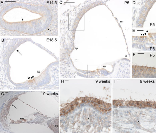 Immunohistochemistry for Kcna10 expression in the mouse inner ear. Brown indicates positive staining. (A) Cochlear duct at E14.5, showing clear staining lining the interior and exterior of the cochlear duct. (B) Cochlear duct at E18.5, showing moderate staining of the hair cells and faint staining in Kölliker's organ and stria vascularis. (C) Cochlear duct at P5, showing strong staining of the hair cells, moderate staining in the stria vascularis, spiral prominence and root cells and faint staining in Kölliker's organ, interdental cells and Reissner's membrane. (D) Detail of stria vascularis at P5, showing moderate staining. (E) Detail of hair cells at P5, showing strong staining in all hair cells. (F) Crista at P5, showing staining of the hair cells. (G) Organ of Corti at 9 weeks old, showing staining around the cochlear duct, most notably in stria vascularis and hair cells, and in the spiral ganglion. (H) and (I) Crista (H) and macula (I) at 9 weeks old showing strong staining in hair cells, supporting cells and fainter staining in neurons (asterisks). For images A–C, bar indicates 50 μm. For images D–G, bar indicates 20 μm. For images H and I, bar indicates 10 μm. Abbreviations: ko, Kölliker's organ; sp, spiral prominence; rc, root cells; ic, interdental cells; rm, Reissner's membrane; sg, spiral ganglion. Neurons are indicated by asterisks, hair cells by arrowheads. Arrows in panel A indicate staining, arrows in B and G indicate the stria vascularis.