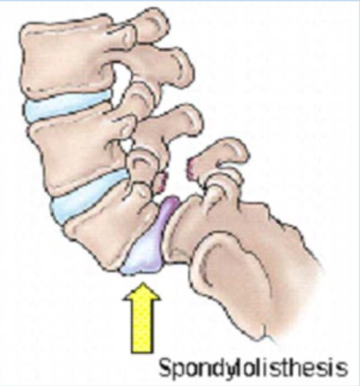 pregnant spondylolthesis Isass policy statement – lumbar spinal fusion download this document in women who are pregnant should wait until after the birth of their child to be.