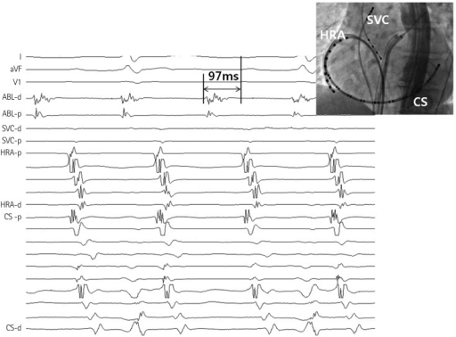 A representative example of activation sequence during atrial tachycardia from SV in patient No. 3. Activation sequence was proximal (P) to distal (D) in the SVC and CS and from high to low at the RA. The earliest potential at the distal ablation catheter (ABL) preceded the onset of P wave at surface ECG by 97 ms. CS: coronary sinus, HRA: high right atrium, SV: sinus venosus, SVC: superior vena cava, ECG: electrocardiograpy.