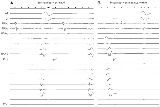 Double potentials were recorded during sinus (A), and a second discrete potential (*) preceded the onset of P wave during atrial tachycardia by mean of 80±37 ms (B). ABL: ablation catheter, HRA: high right atrium, CS: coronary sinus, AT: atrial tachycardia.
