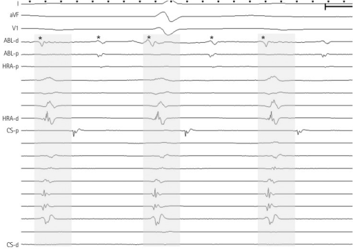 Patient No. 4 showed 2 : 1 conduction potentials from the SV (*) to other areas. SV: sinus venosus, ABL: ablation catheter, HRA: high right atrium, CS: coronary sinus.