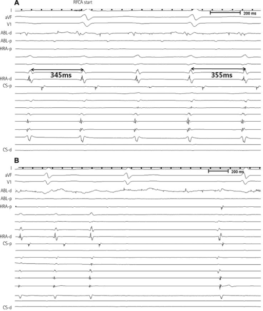 Effects of radiofrequency ablation. Radiofrequency energy delivery at the SV slowed the tachycardia cycle length from 345 to 355 ms (A) and finally resulted in sinus rhythm within 56 seconds (B). There were no inducible tachycardias thereafter. SV: sinus venosus, RFCA: radiofrequency catheter ablation, ABL: ablation catheter, HRA: high right atrium, CS: coronary sinus.