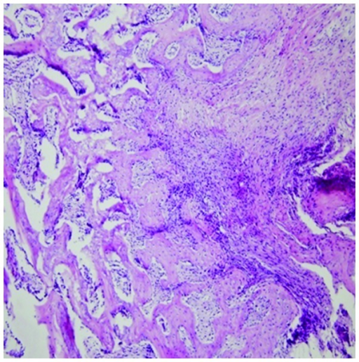 Inflammatory cells and Staphylococcus aureus abscess formation are visible, as well as a small amount of new bone formation, primarily replacing the scar tissue. Haematoxylin and eosin staining. Magnification, ?