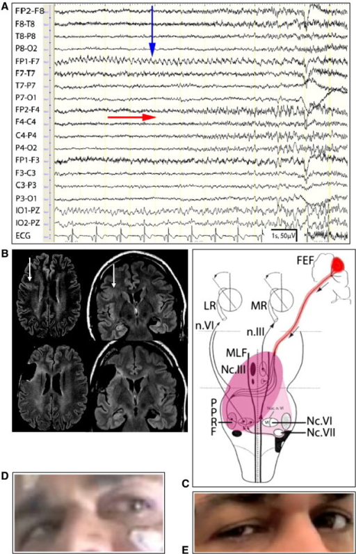 Hypothesis of brain stem involvement in epileptic monocular nystagmus. A: EEG: channels FP1-F7, F7-T7, and IO1-PZ (left infraorbital) show an eye artifact by monocular nystagmus of the left eye, with evolution of frequency (initially 7 Hz, later 4 Hz); vertical arrow; the EEG with reference PZ shows most prominent deflections in F7 and IO1 which indicate an additional vertical component of the rapid monocular eye movements (Supplemental material). From second 5 on, a rapid EEG seizure pattern evolves over the right frontocentral region (phase reversal at channel F4-C4; horizontal arrow). B: Pre- and postoperative MRI (coronal und transversal planes); white arrows indicate the right frontal focal cortical dysplasia. C: Hypothesis for brainstem involvement: a) Usual ictal activation: right frontal cortical seizure activity (FEF = frontal eye field; dark red) propagates to the contralateral left paramedian pontine reticular formation (PPRF), nucleus nerve VI (nc.VI), and via the right medial longitudinal fasciculus (MLF) to the contralateral right nucleus nerve III (nc.III), with subsequent activation of the lateral rectus muscle of the left eye (LR) and the medial rectus muscle of the right eye (MR); effect: gaze of both eyes to the left. b) Irregular ictal activation: in addition, activation of the left nc.III; effect: coactivation of the medial and lateral rectus muscles of the left eye, with left monocular nystagmus, strabismus, and diplopia (D). The comparatively wide left palpebral fissure could result from innervation of the levator palpebrae muscle of the left eye (innervation by the 3rd nerve, n.III). Usual plus irregular ictal brainstem activation is marked in dark magenta. c) Irregular interictal state (bright magenta): ictal dysfunction with predominance of the left brainstem is followed by residual dysfunction of the right nc.VI and nc.VII. This results in a net hyperfunction of the right n.VI with monocular lateral nystagmus of the right eye and involves the right n.VII with right periocular spasm (E). For further illustrations, see also the videos in the Supplemental material. The dysfunction of the brainstem ceased after successful right frontal cortical epilepsy surgery and neuroophthalmological findings normalized.