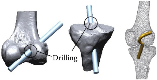 Construction of the tunnel and ACL graft.