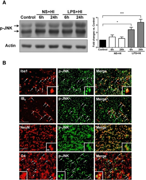 Up-regulation of c-Jun N-terminal kinase (JNK) activation in microglia, endothelial cells, neurons, and oligodendrocyte progenitors after lipopolysaccharide (LPS)-sensitized hypoxic-ischemia (HI). (A) Immunoblotting showed that the LPS + HI group (n = 4), but not the NS + HI group (n = 4) had increased p-JNK expression at 6 and 24 hours post-insult compared to the control group (n = 3). (B) Immunofluorescence in the LPS + HI group 24 hours post-insult showed up-regulation of p-JNK expression in Iba1-positive microglia, IB4-positive microvascular endothelial cells, NeuN-positive neurons, and O4-positive oligodendrocyte progenitors. Arrowheads indicate many p-JNK-positive cells attached to or were located around the IB4-positive microvessels. Scale bar = 50 μm for Iba1 and IB4, and 25 μm for others. Inset scale bar = 2.5 μm. Values are means ± SEM. *P < 0.05, ***P < 0.001.