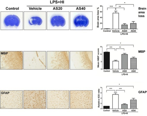 Inhibiting c-Jun N-terminal kinase (JNK) activity using AS601245 significantly attenuated lipopolysaccharide (LPS)-sensitized hypoxic-ischemic (HI) brain injury. AS601245 treatment at a dose of 20 mg/kg (n = 12) was more effective than 40 mg/kg (n = 11) in attenuating cortical injury (Nissl stain, upper panel), increasing myelination (MBP, middle panel), and decreasing astrogliosis (GFAP, lower panel) than vehicle treatment (n =15) on P17 after LPS-sensitized HI on P5. Scale bar = 200 μm for MBP and 100 μm for GFAP. Values are means ± SEM. ***P < 0.001, **P < 0.01, *P < 0.05. GFAP, glial fibrillary acidic protein; MBP, myelin basic protein.