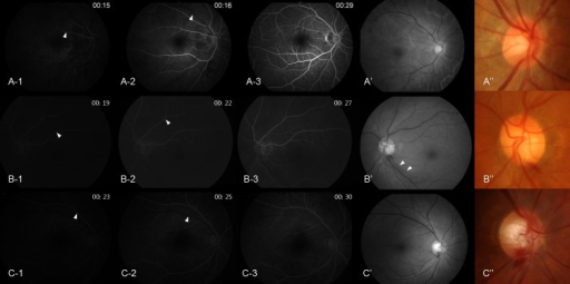 "Fluorescein angiography of normal control eye (A) and glaucoma eyes with disc hemorrhage (DH) (B and C).The angiography of normal control eye was from a patient who underwent this examination due to unknown blurred vision (this case is not included in the analysis of the present study, however, is added in this figure to help comparison with glaucoma eyes). Arteriovenous transit time is the time between the entrance of the opaque substance into the retinal artery (arrowhead in A-1, B-1, C-1) and entrance into the vein (arrowhead in A-2, B-2, C-2) from a distance of 2 optic discs. Glaucomatous eye with DH occurring at the border of localized retinal nerve fiber layer (RNFL) defect (B' and B""; localized RNFL defect, arrowhead in B') shows prolonged arteriovenous transit time (time interval between B-1, when fluorescein dye is introduced into the artery, and B-2, when fluorescein dye enters the vein from a distance of 2 optic discs) (delayed by 3 seconds). Glaucomatous eye with DH occurring at the 6 o'clock position not related to a localized RNFL defect (C' and C"") shows prolonged arm-retina time, which is the time from the administration of fluorescein dye to the antecubital vein until it becomes visible in the retinal arteries (C-1, 23 seconds)."