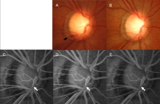A 47-year-old female with normal-tension glaucoma.Disc hemorrhage (DH, black arrow) was present at the border of a localized retinal nerve fiber layer defect in her right eye (A). Fluorescein angiography was performed 3 months after the disappearance of the DH in the disc photograph (B). A vessel filling defect (white arrow) was found at the mid-arteriovenous phase (C), early late phase (D), and late phase of fluorescein angiography (E). The vessel filling defect was proximal to the location of the DH. This vein is reflected at the cup margin, and the proximal location of DH is at the cup margin.