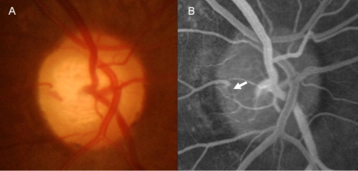 A 61-year-old female with normal-tension glaucoma.This patient had a disc hemorrhage (DH) at the 9 o'clock position at the cup base (white arrow). Fluorescein angiography revealed a thrombus, shown as a filling defect inside the vessel, where DH had occurred.