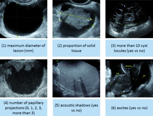 Ultrasound characteristics selected as predictors in the ADNEX model.