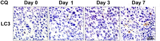 Delayed effects of autophagy inhibition by CQ in xenograft tumors.Tumors treated with CQ (60 mg/kg/day) were collected after treatment for 1, 3 and 7 days and sectioned for LC3 immunohistochemistry. Scale bar = 20 μm.